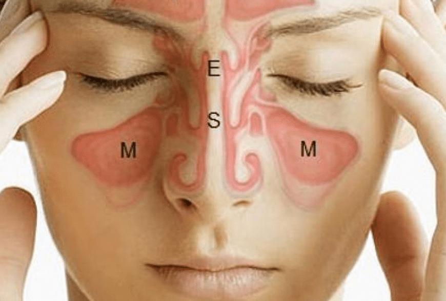 Spriječite upalu sinusa pomoću nekoliko jednostavnih i prirodnih alternativa.
