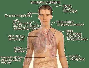 Simptomi anemije