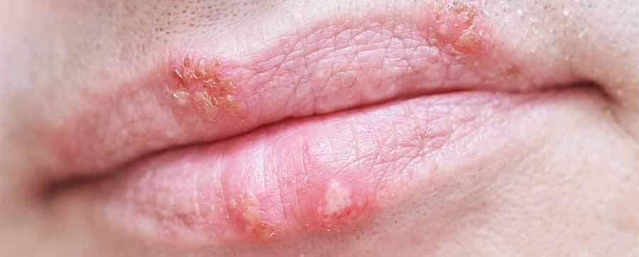 Šta je i kako izgleda herpes na usnama