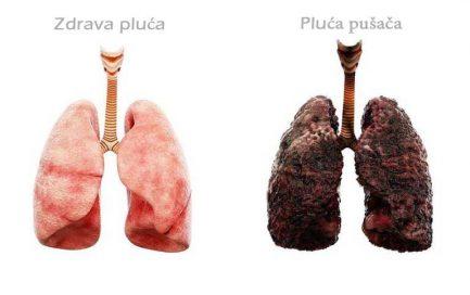 Pluća pušača